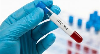 Де в Переяславі обстежитися на ВІЛ і яким міфам про вірус не варто вірити? Пояснює лікарка