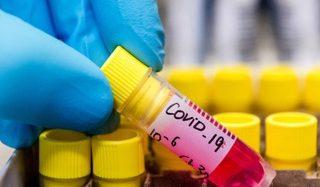 Оперативна інформація про поширення коронавірусної інфекції COVID-1